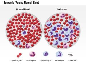 Sel kanker leukimia