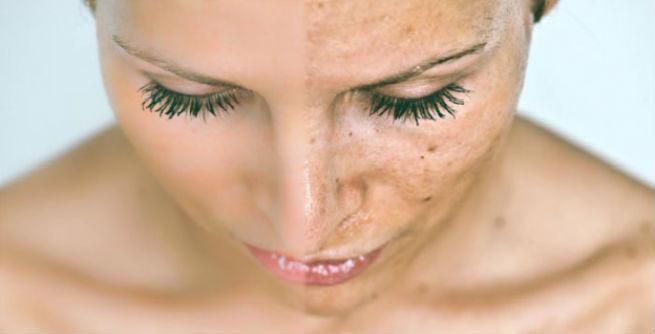 Masalah kulit wajah saat perawatan