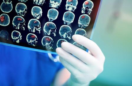 Tumor Otak Primer dan Sekunder